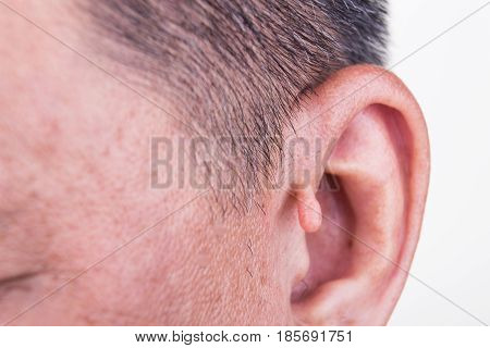 Human Mutation With Extra Growth On Ear