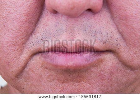 Closeup On Saggy Cheek Skin Of Matured Asian Man
