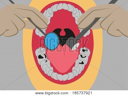 Vector illustration in flat design oral cavity and dental instruments