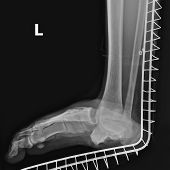 X-ray image of joint dislocation left foot protected at splint. poster