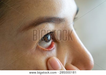 Woman Red Eye Dry Close Up, Fatigue, Conjunctivitis Problems With Blood Vessels. Medicine Healthcare
