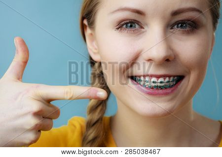 Dentist And Orthodontist Concept. Young Woman Teen Girl Smiling Pointing With Fingers On Teeth With