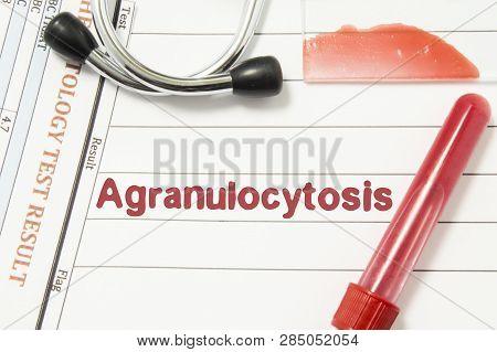 Diagnosis Of Agranulocytosis. Laboratory Blood Bottle, Glass Slide With Blood Smear, Hematology Test