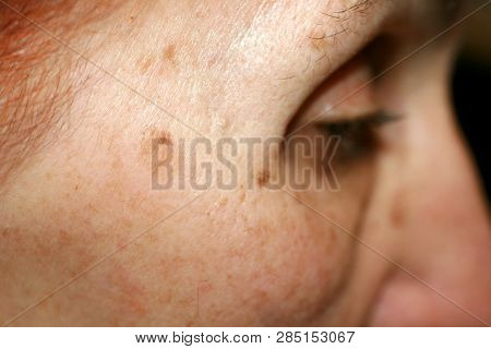 Pigmentation On The Face. Brown Spot On Cheek. Pigment Spot On The Skin. Profile.