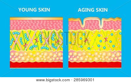 The diagram of younger skin and aging skin showing the decrease in collagen and broken elastin in older skin. poster