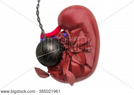Kidney Destroying By Wrecking Ball. Pain In Kidneys, Chronic Kidney Disease Concept. 3d Rendering Is