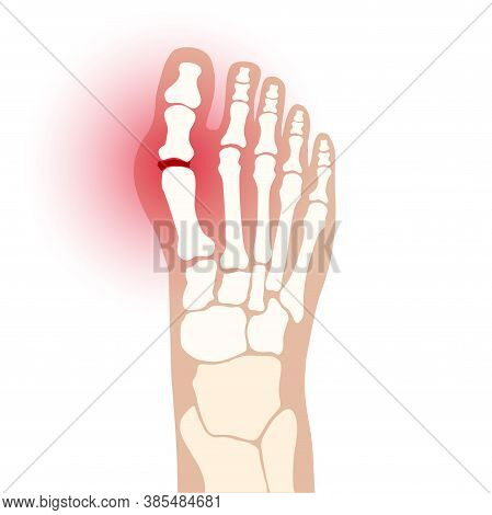 Gout Illness Logo For Clinic. Arthritis Joint In The Ankle. Foot Pain Icon. Human Feet Bone Anatomy