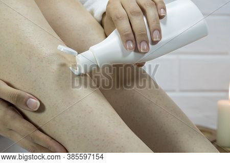 A Woman Applies A Moisturizer To The Skin Of Her Legs. Problem Skin, Strawberry Legs, Chicken Skin,