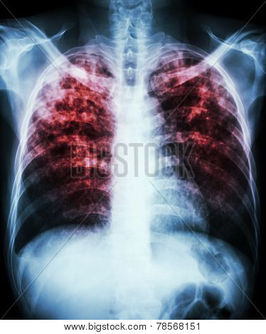 """""""Pulmonary tuberculosis"""" Film chest x-ray show interstitial infiltration both lung due to mycobacterium tuberculosis infection poster"""