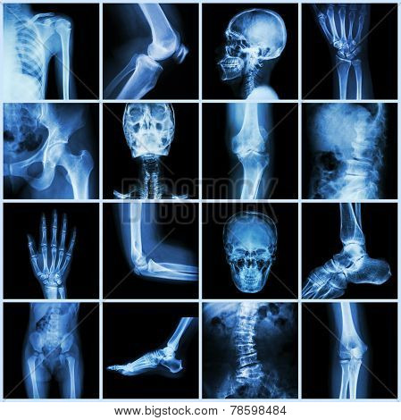 Collection human joint ( skull head neck shoulder chest thorax shoulder arm elbow forearm wrist hand finger palm spine back pelvis thigh knee leg foot ankle toe) poster