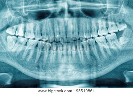 Panoramic dental X-ray, fully impacted wisdom tooth is seen