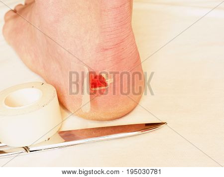 Heel Wound With Bandage, Scissors Ready. Craced Terrible Blister On Human Heel.