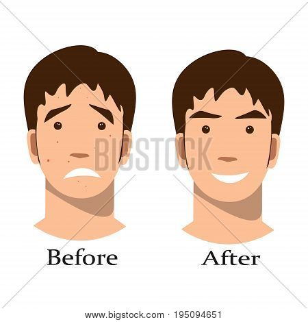 Boy acne treatment before and after. Vector illustration