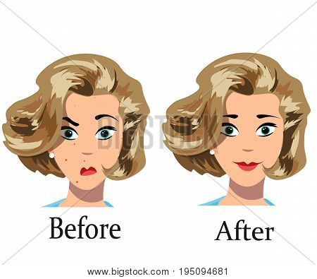 Acne treatment before after. Vector illustration on white background