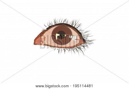 Dışarıdan gelen doğal ışık yansımasının gözdeki görüntüsü ve gözün çevresi
