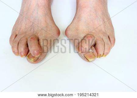 Medetcin, valgus bunion, leg with deformity valgus hallux (Bunion), the consequence of refusal of treatment