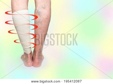 The female legs. Varicose veins. Phlebeurysm. Thrombophlebitis and elastic bandage