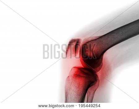 Film x-ray knee joint with arthritis ( Gout Rheumatoid arthritis Septic arthritis Osteoarthritis knee ) and blank area at left side