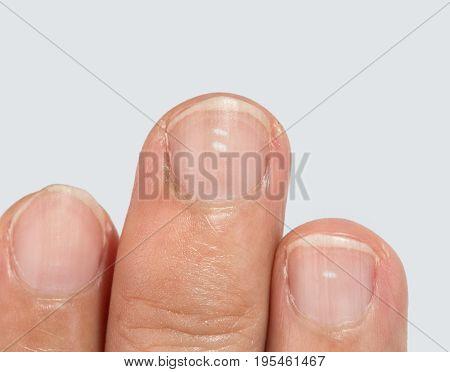 White spots on fingernails isolated on white back ground