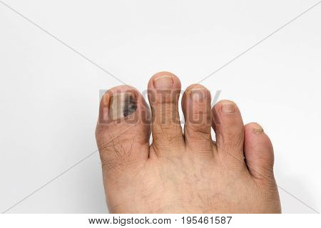 Black and Bruised Toenail on white background .