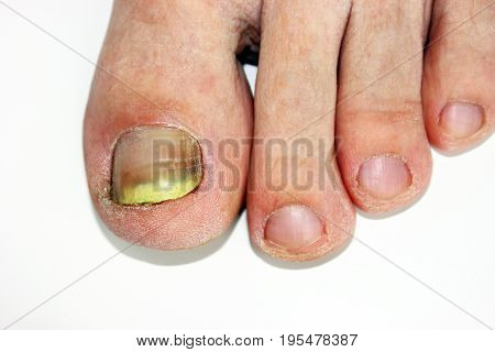 Fungus infection on nails of man's foot, to cause a pain to man