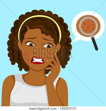 Dark skinned girl upset about pimples on her face