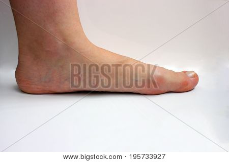 Medicine, flat feet, tarsoptosia,  foot female isolated on white background, as a manual for the textbook  Medicine, flat feet, tarsoptosia,  foot female isolated on white background, as a manual for the textbook