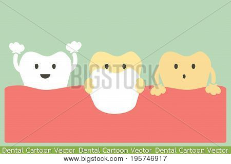 tooth cartoon vector - veneers teeth concept