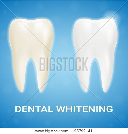 Tooth Veneer, Teeth Whitening, Whitening Toothpaste Isolated On A Background. Realistic Vector Illustration. Healthcare stomatology and cleaning professional teeth illustration