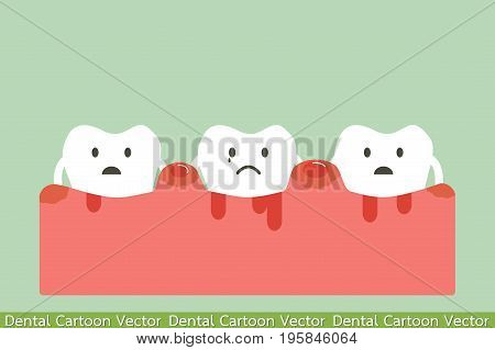 Periodontitis And Bleeding