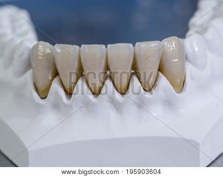 Monolithic Zirconia Restorations. Teeth In A White Cast.