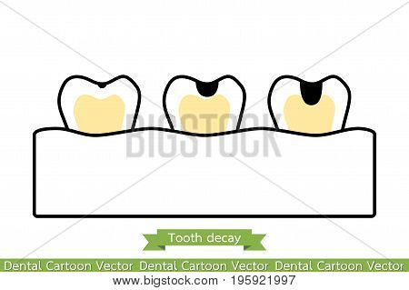 Stages Decay Tooth - Vector & Photo (Free Trial)   Bigstock