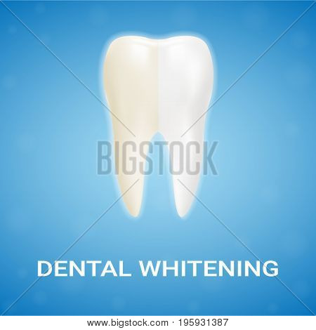 Dental Veneer, Teeth Whitening, Whitening Toothpaste Isolated On A Background. Realistic Vector Illustration. Healthcare stomatology and cleaning professional teeth illustration