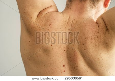 Close Up Detail Of The Bare Skin On A Man Back With Scattered Moles And Freckles. Checking Benign Mo