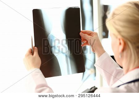 Female radiolog holding in hands x-ray films images aganist hospital office background. CT scans of bones health concept. poster