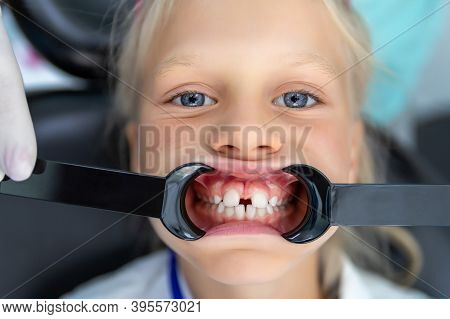 Little Blond Kid Girl At Dentist Office Showing Malocclusion And Diastema Overbite Teeth Missing Gap