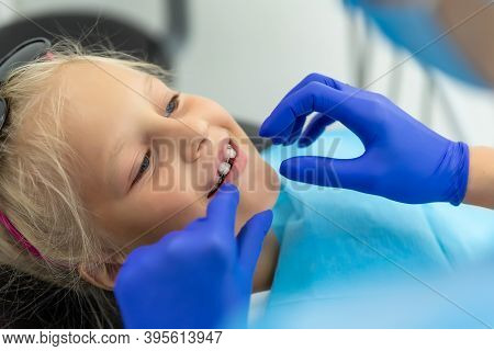 Little Cute Adorable Happy Caucasian Blond Kid Girl At Dentist Office At Dentist Check-up Of Dental