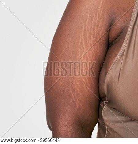 Plus size woman arm's white stretch mark body positivity shoot