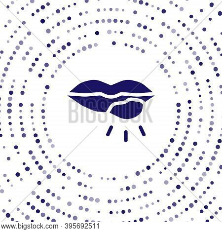 Blue Herpes Lip Icon Isolated On White Background. Herpes Simplex Virus. Labial Infection Inflammati