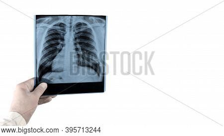 X-ray Of Human Lungs Isolated On White Background Space For Text And Inscription, Picture Of Lungs W