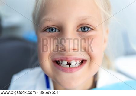 Little Blond Happy Kid Girl At Dentist Office Smiling Showing Diastema Overbite Teeth Missing Gap. C