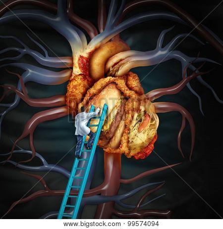 High Cholesterol Treatment