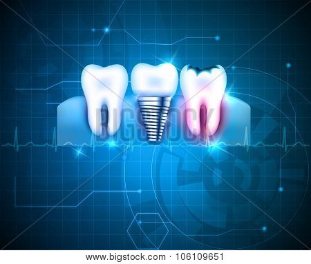 Dental Treatment Background