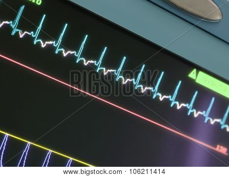 Display With Ecg-curve