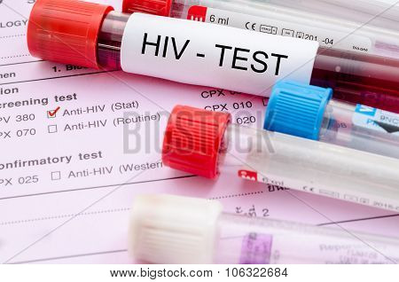 Sample Blood Collection Tube With Hiv Test Label.