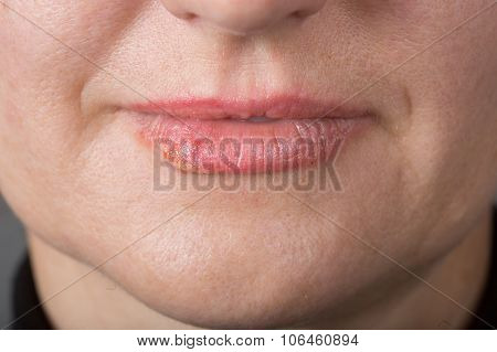 Lip infection with the herpes virus