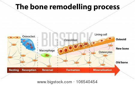 Bone Remodelling Process