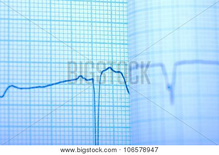 Seismograph Draw On The Grid Paper