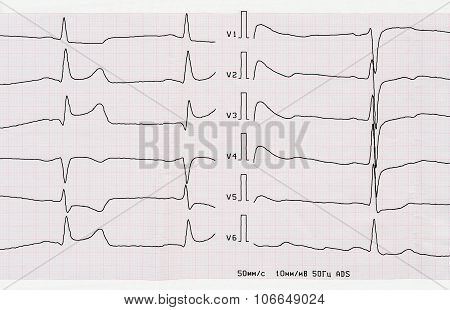 Ecg With Acute Period Of Macrofocal Posterior Myocardial Infarction