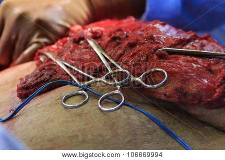 Surgery With Hemostats